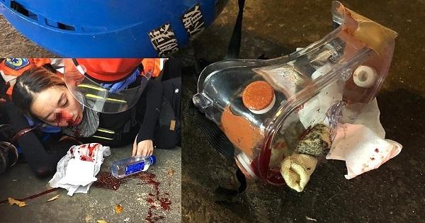 8月11日のデモの際、ある若い女性が警察のビーンバッグ弾に撃たれ、眼球が破裂しました。失明してしまった可能性が高いです。この女性のゴーグルにはビーンバッグ弾が突き刺さっており、動かぬ証拠があります。