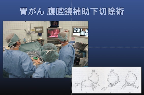 外科治療004