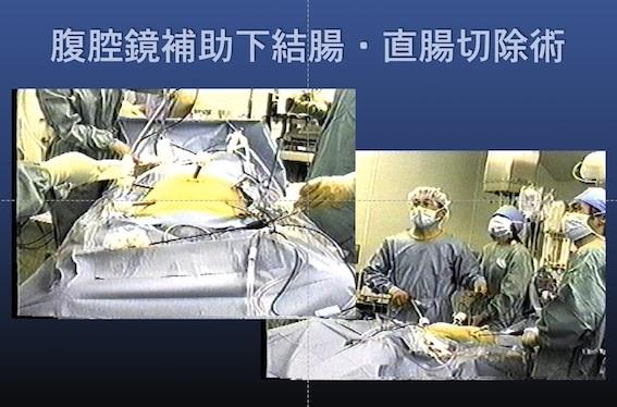 外科治療009