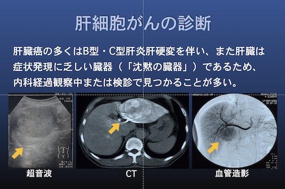 がん治療 かんたんすい001
