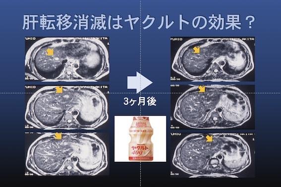 免疫療法食品007