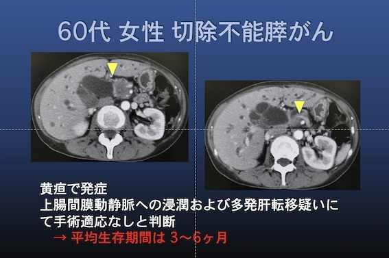 化学療法 膵癌001