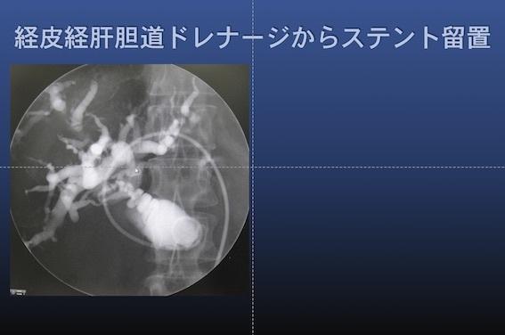 化学療法 膵癌002