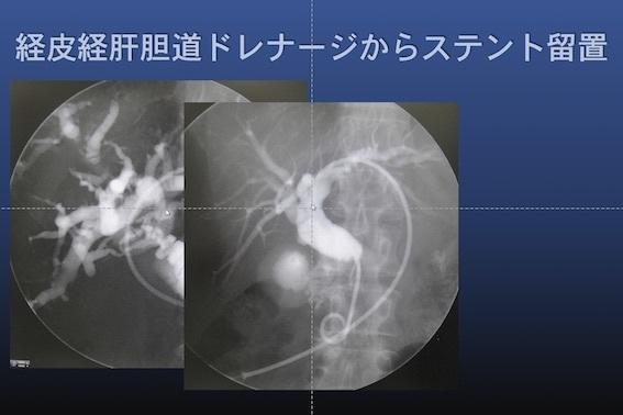 化学療法 膵癌003