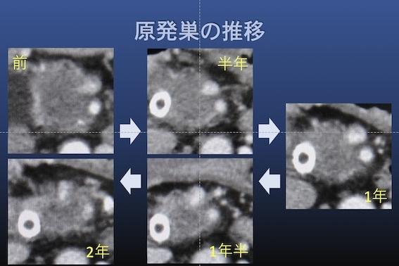 化学療法 膵癌006