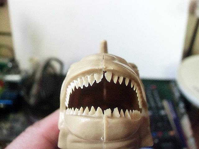 5-歯のバリ