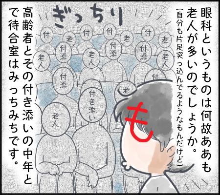 眼科奇譚1