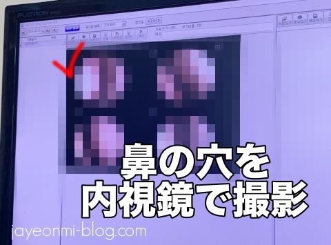 COBY韓方クリニック_コビー_耳鼻科_鼻腔の保湿_8