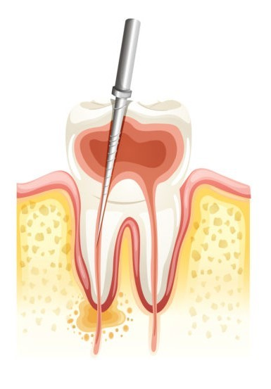root-canal-therapy-771x1024.jpg