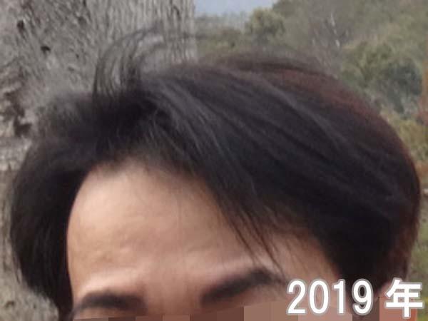 2019年のおでこのシワ