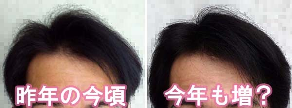 去年と比較して今年も髪は増えました