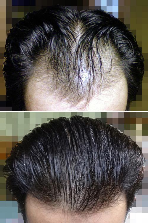 生え際 はげ 前髪