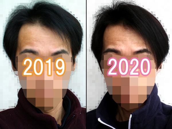 去年との髪の比較、増えました