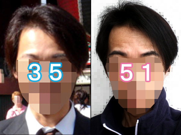 全盛期との髪の比較