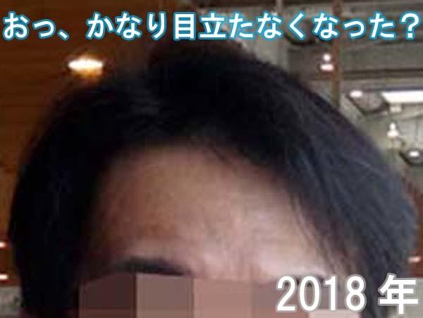 2018年の額のシワ