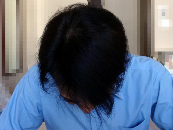 頭頂部の発毛の状態