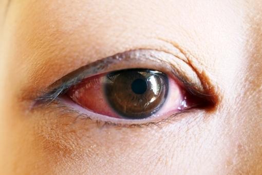 eye36843.jpg