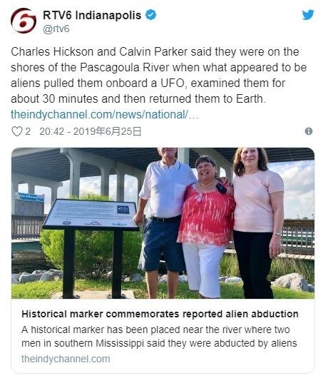【アブダクション】UFOにさらわれて身体検査されたとか、身体に金属埋め込まれたとか昔あったけど本当なのか?